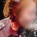 יידו אבנים ופצעו שוטרת // צילום: דוברות המשטרה