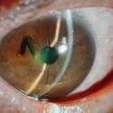 """צילום: מח' עיניים בי""""ח אסותא אשדוד"""