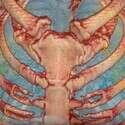 ריאות של חולה קורונה // צילום הדמיה: בית החולים ג'ורג' וושינגטון, וושינגטון