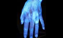 // ככה נראית יד שזקוקה בדחיפות לשטיפה במים וסבון