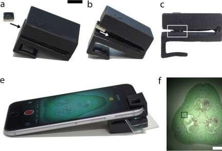 מיקרוסקופ אישי בהדפסת תלת ממד // צילום: מתוך Scientific Reports