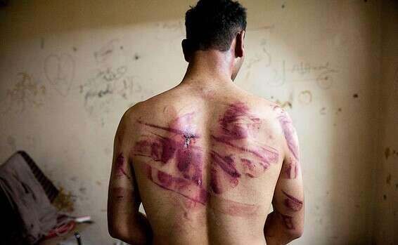 Le dos d'un homme qui a survécu à l'emprisonnement en Syrie // Photo: AFP