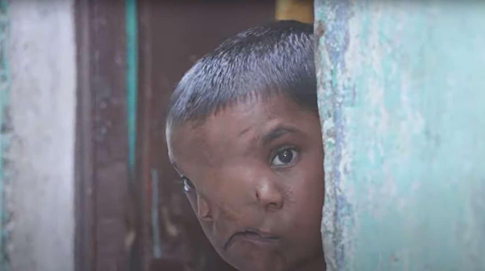 הזוי: ילדה הודית הפכה למוקד עלייה לרגל בעקבות מום בלידה שיצר לה שני אפים